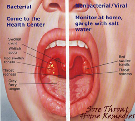 Bacterial infection of the throat — photo 15